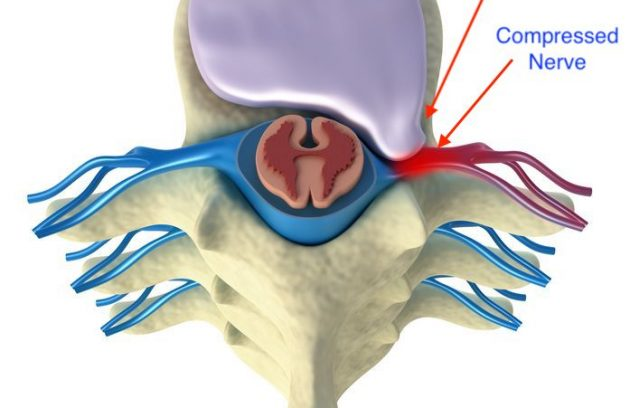 prolapse of intervertebral disc top view